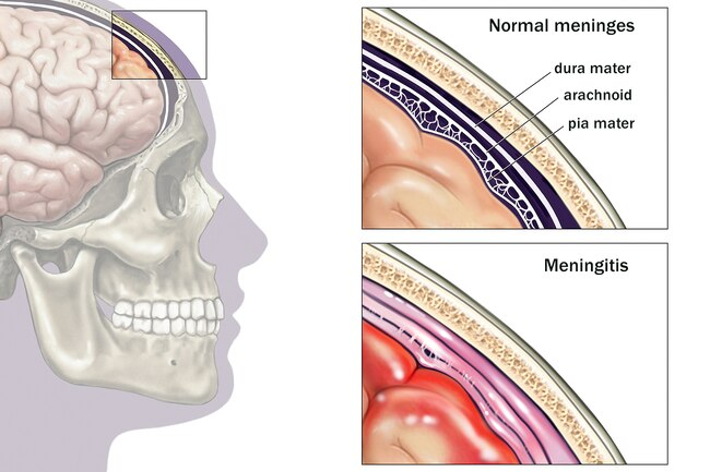 https://medbul.net/wp-content/uploads/2020/12/1800ss_medicalimages_rm_brain_meninges_illustration.jpg