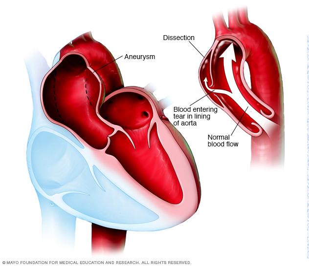 Аортна аневризма и аортна дисекация