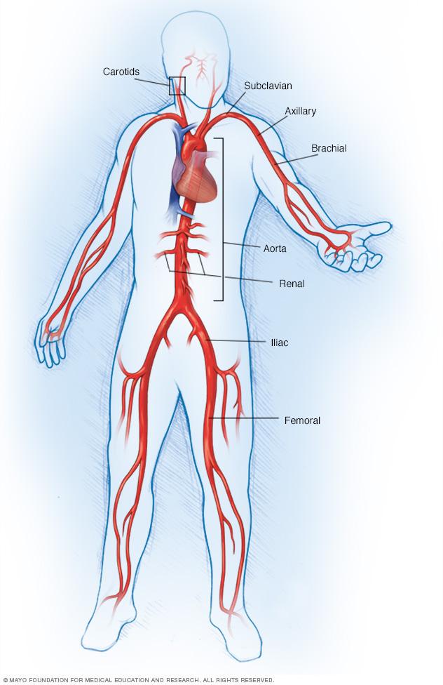 големи артерии