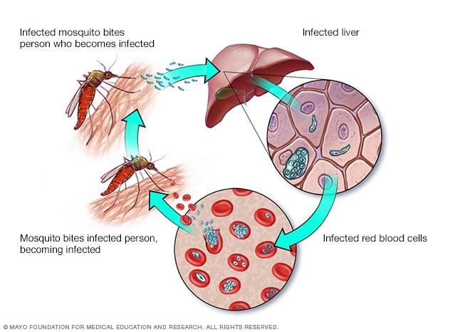 Малария: причини, симптоми и лечение