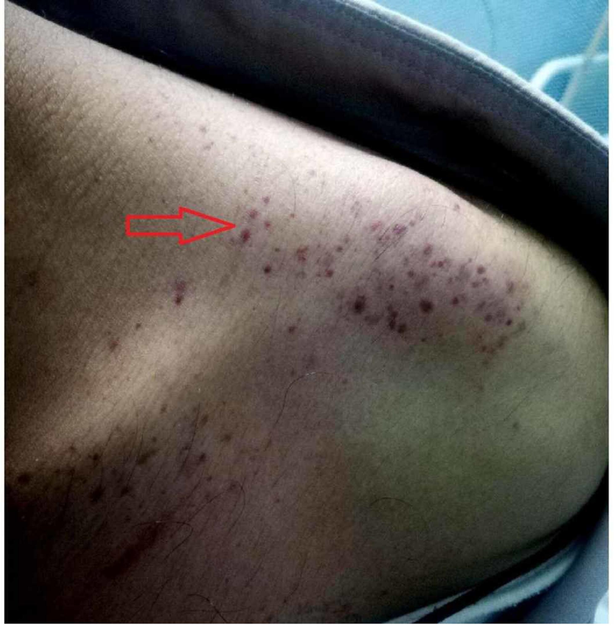 Множество пурпура и петехии на лявото рамо на пациент с треска от денга
