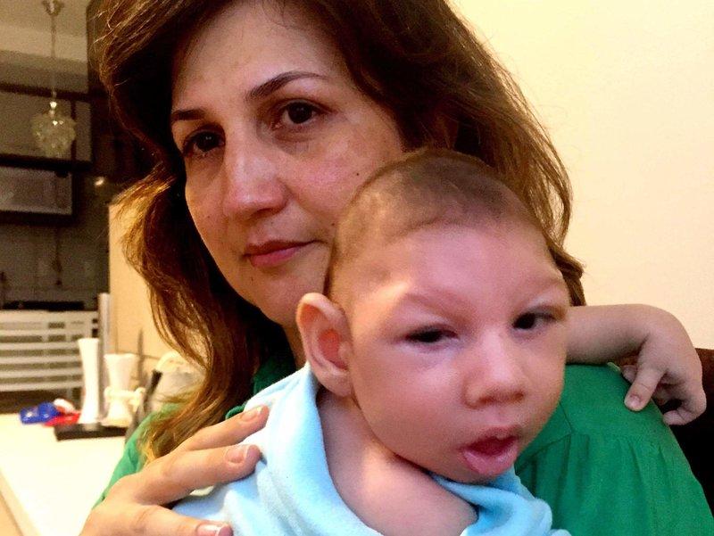 Марила Лима, майка от Бразилия, е имала вирус Зика по време на бременност.  Нейният 2,5-месечен син Артър има микроцефалия - вроден дефект, характеризиращ се с малка глава и тежко мозъчно увреждане.
